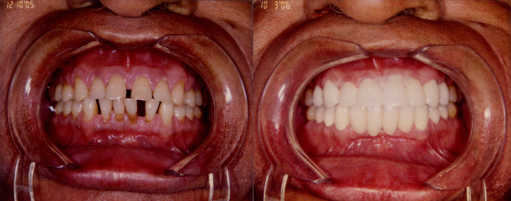 BEFORE AND AFTER FULL MOUTH RECONSTRUCTION
